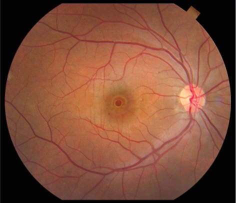 Appearance of a macular hole on clinical exam.
