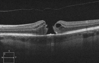 OCT of an eye with a Macular Hole