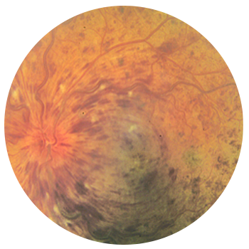 Fundus photo of a normal eye (left) compared with a CRVO in the fellow eye (right)