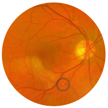 retinal-artery-occlusion