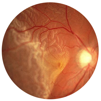 A retinal tear associated with a retinal detachment.