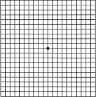 Normal Amsler Grid