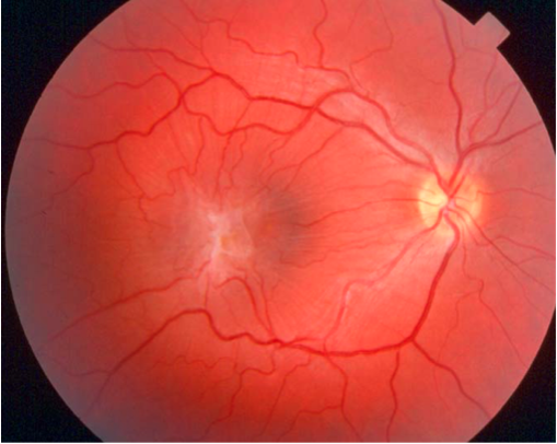 Appearance of an epiretinal membrane on clinical exam.