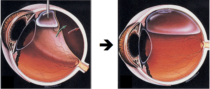 Repair of a retinal detachment with a pneumatic retinopexy procedure.