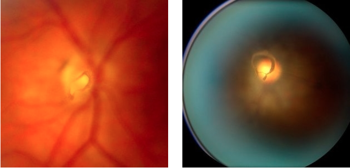 Examples of appearance of a Posterior Vitreous Detachment (PVD) on clinical exam